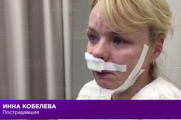 Опубликовано видео срассказом пострадавшей вовремя взрыва вПетербурге