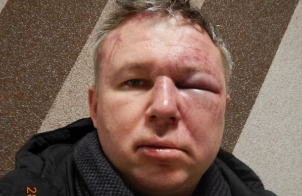 Правозащитника Динара Идрисова жестоко избили вПетербурге