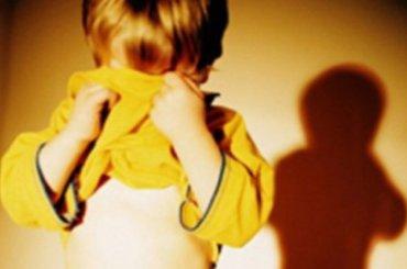 Петербуржец приложил руку семимесячного сына краскаленной сковороде
