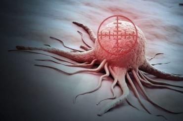 Стали известны основные причины развития рака груди