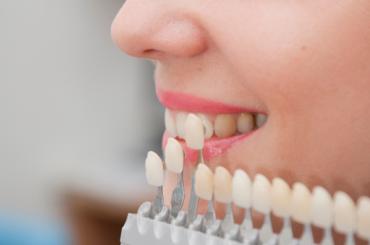 Петербургские ученые хотят печатать зубные протезы на3D-принтере