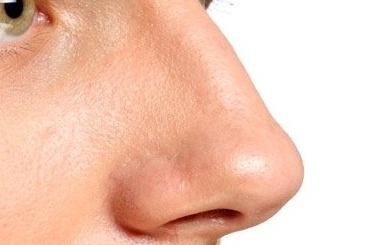 Петербуржец засломанный нос росгвардейца заплатит свободой