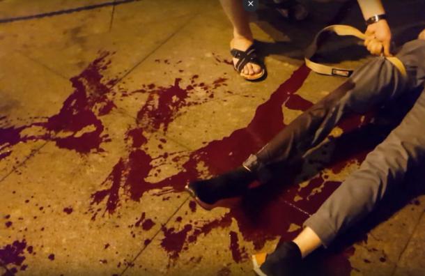 Заступившегося заженщину студента порезали ножом вцентре Петербурга