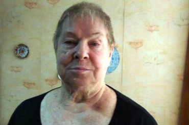«Долго исчастливо» просит помочь петербурженке Валентине Бороздиной