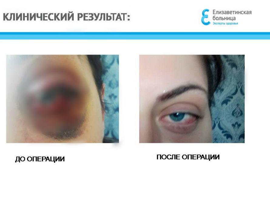 глаз до-после копия.jpg