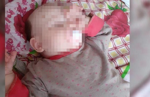 Девочку сгигантским родимым пятном прооперируют вПетербурге
