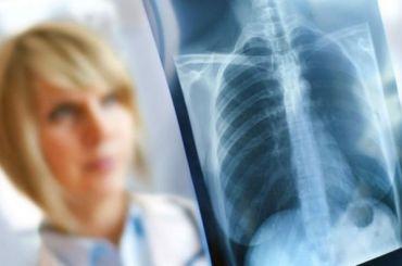 Фигуранту «пензенского дела» диагностировали открытую форму туберкулеза