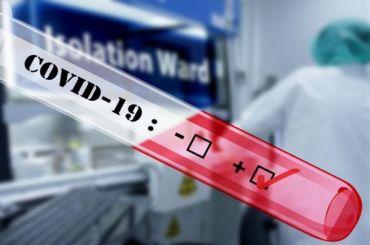 Китайские медики нашли коронавирус вкуриных субпродуктах изРоссии