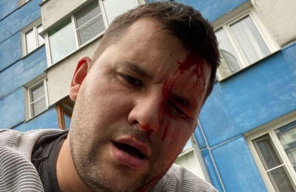 Одного изчетырех нападавших наактивиста Александра Виноградова посадили надва споловиной года