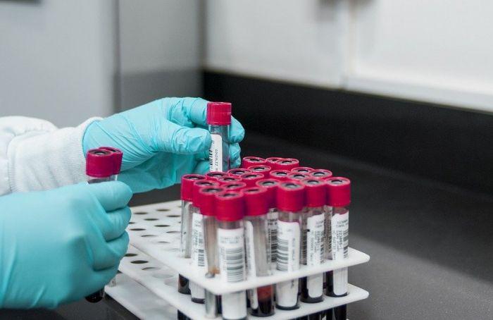 Все больше петербургских доноров антиковидной плазмы— непереболевшие, авакцинированные
